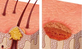 Crioterápia y cirugía